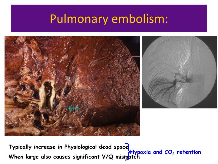 Pulmonary embolism: