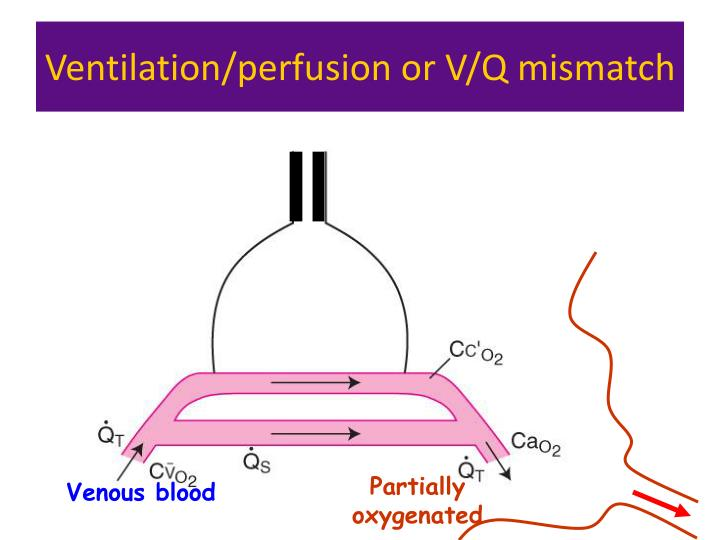 Ventilation/perfusion or V/Q mismatch