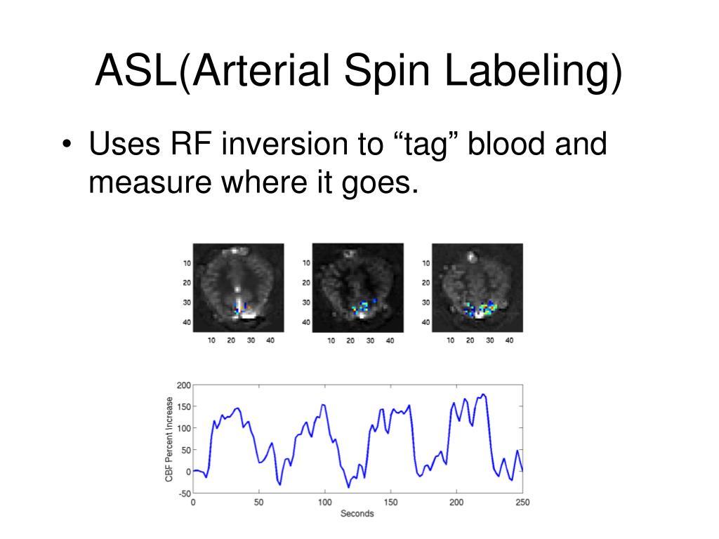 ASL(Arterial Spin Labeling)