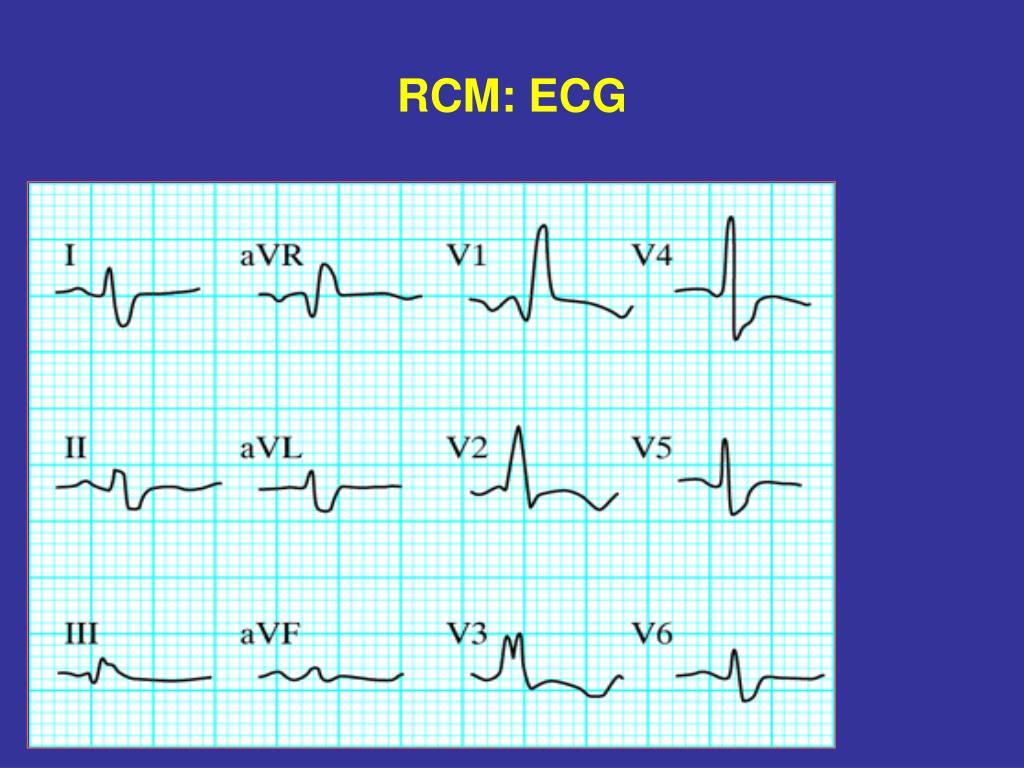 RCM: ECG