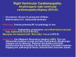 right ventricular cardiomyopathy arrythmogenic right ventricular cardiomyopathy displasy rvc d