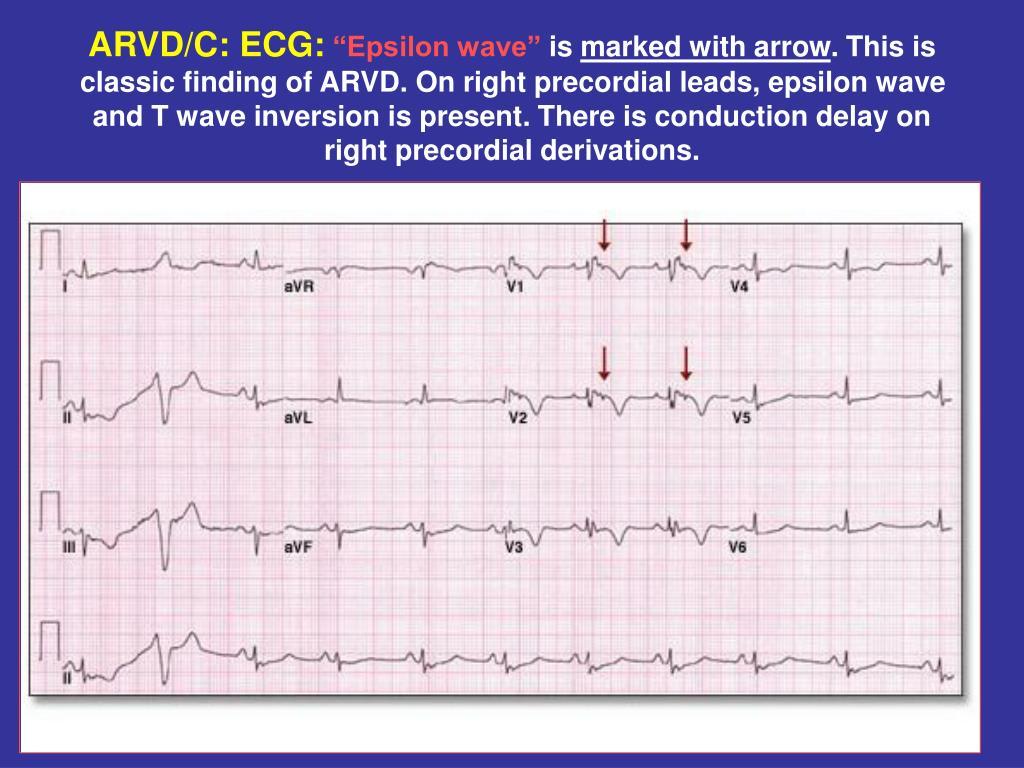 ARVD/C: ECG: