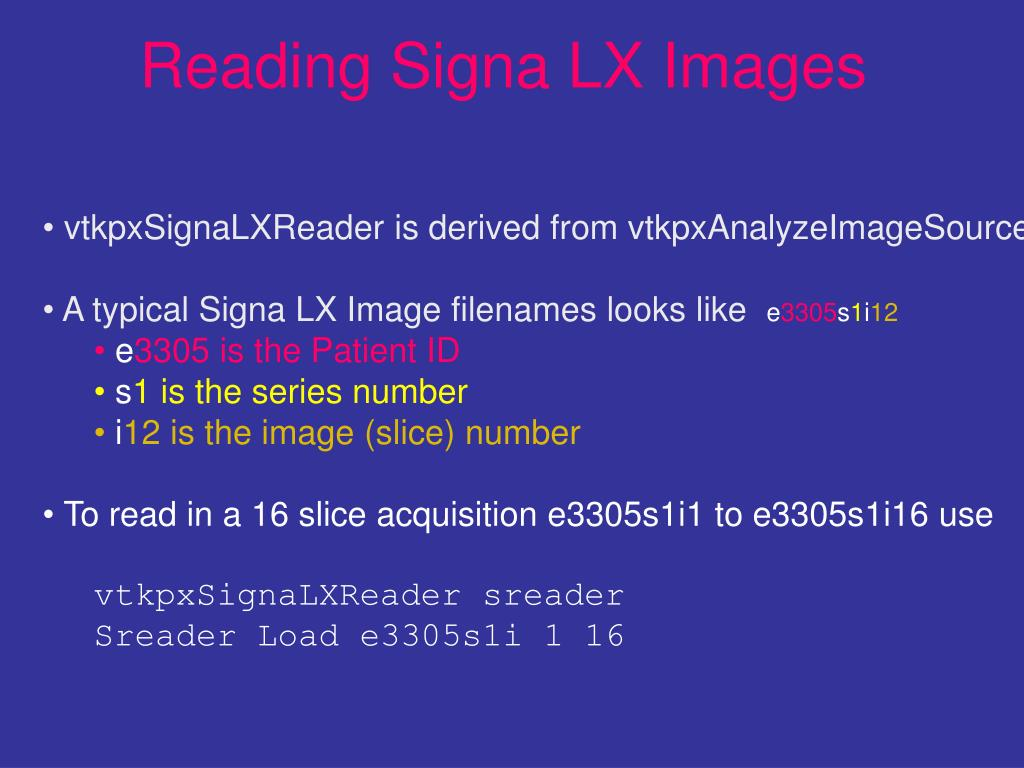 Reading Signa LX Images