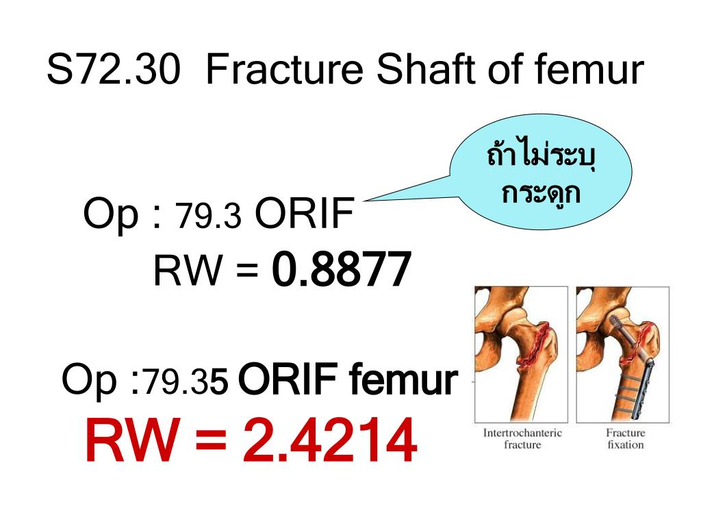 S72.30  Fracture Shaft of femur