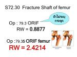s72 30 fracture shaft of femur