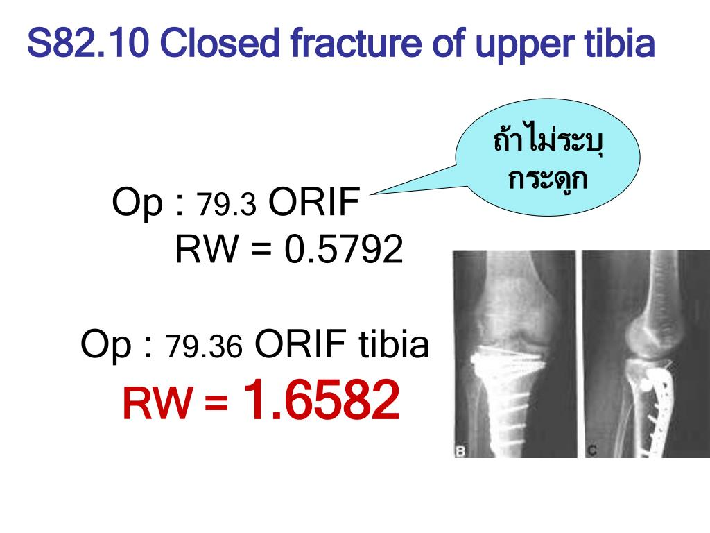S82.10 Closed fracture of upper tibia