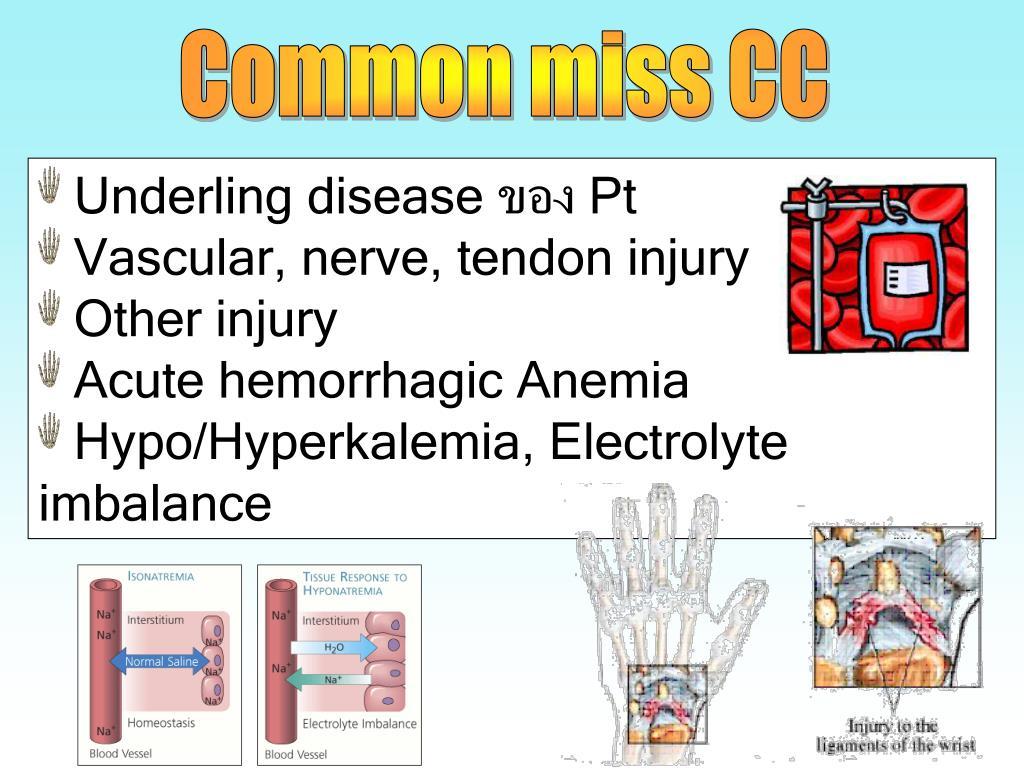 Common miss CC