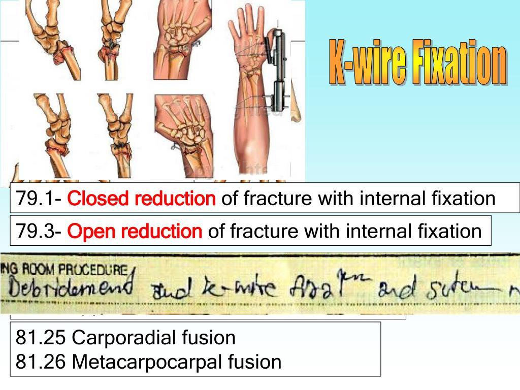 K-wire Fixation