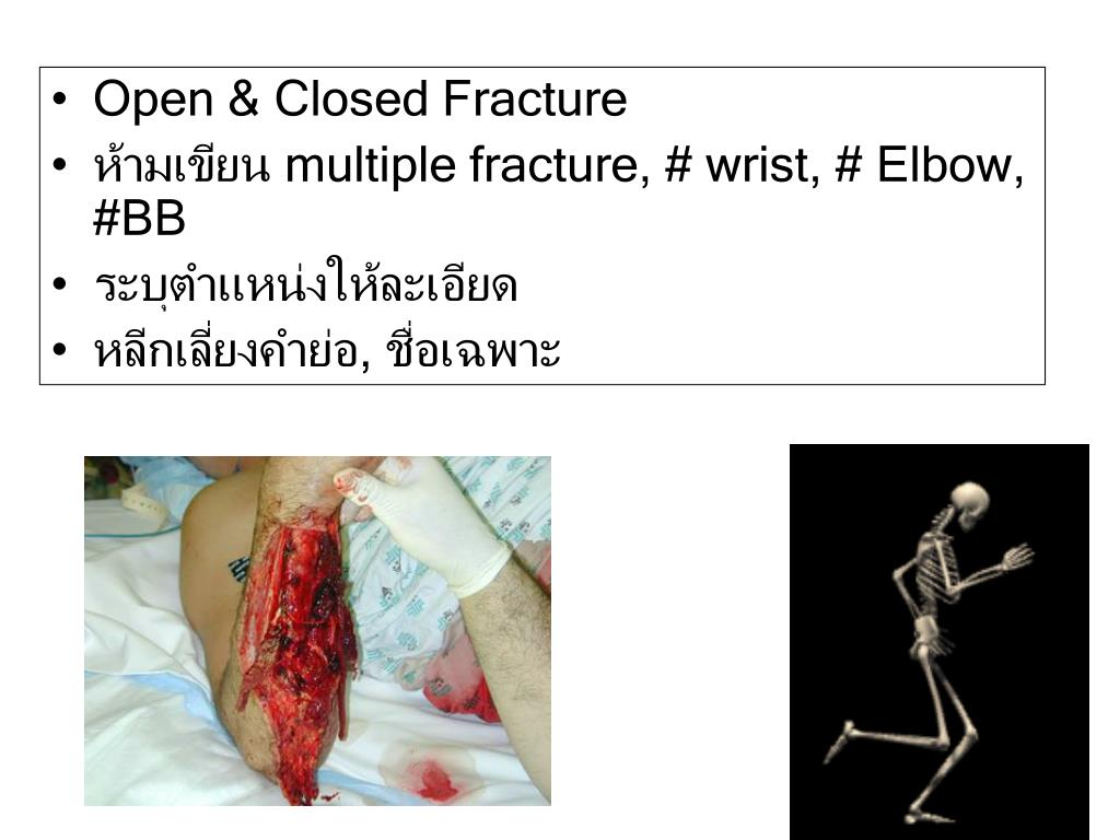 Open & Closed Fracture