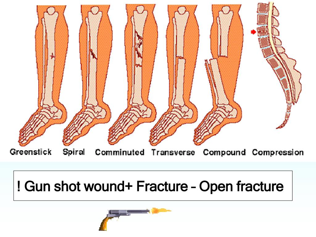 ! Gun shot wound+ Fracture – Open fracture