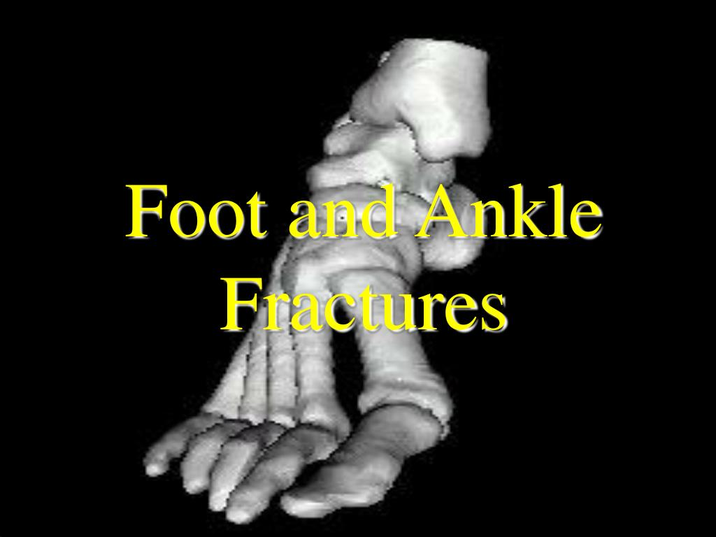 Foot and Ankle Fractures
