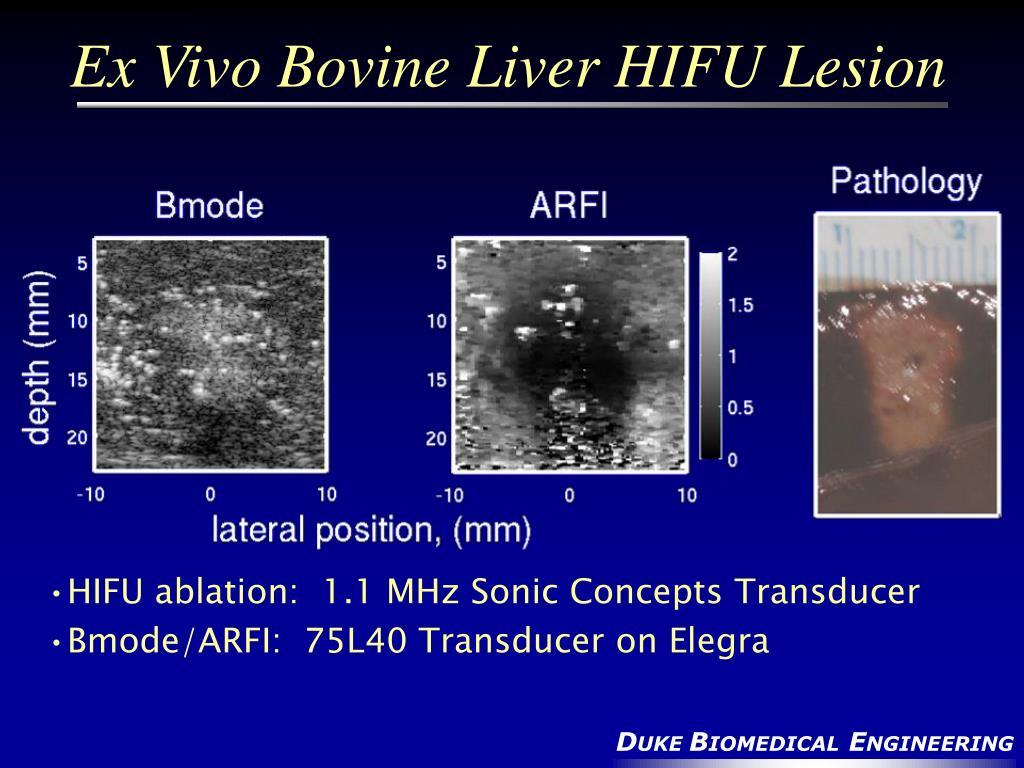 Ex Vivo Bovine Liver HIFU Lesion