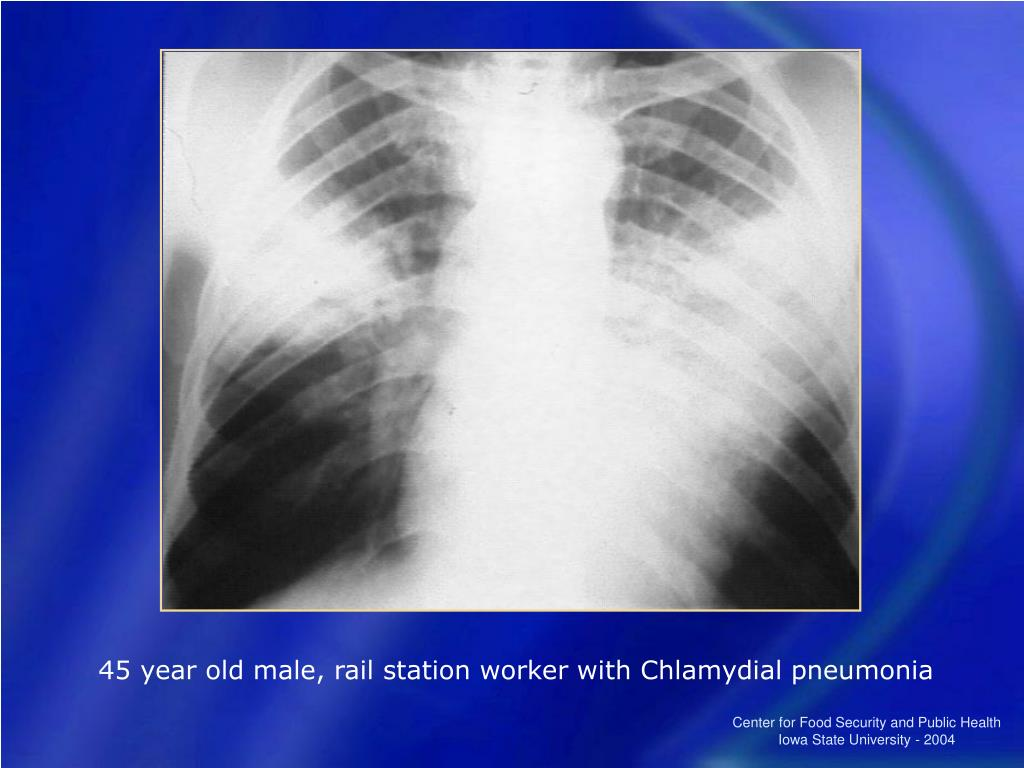 45 year old male, rail station worker with Chlamydial pneumonia