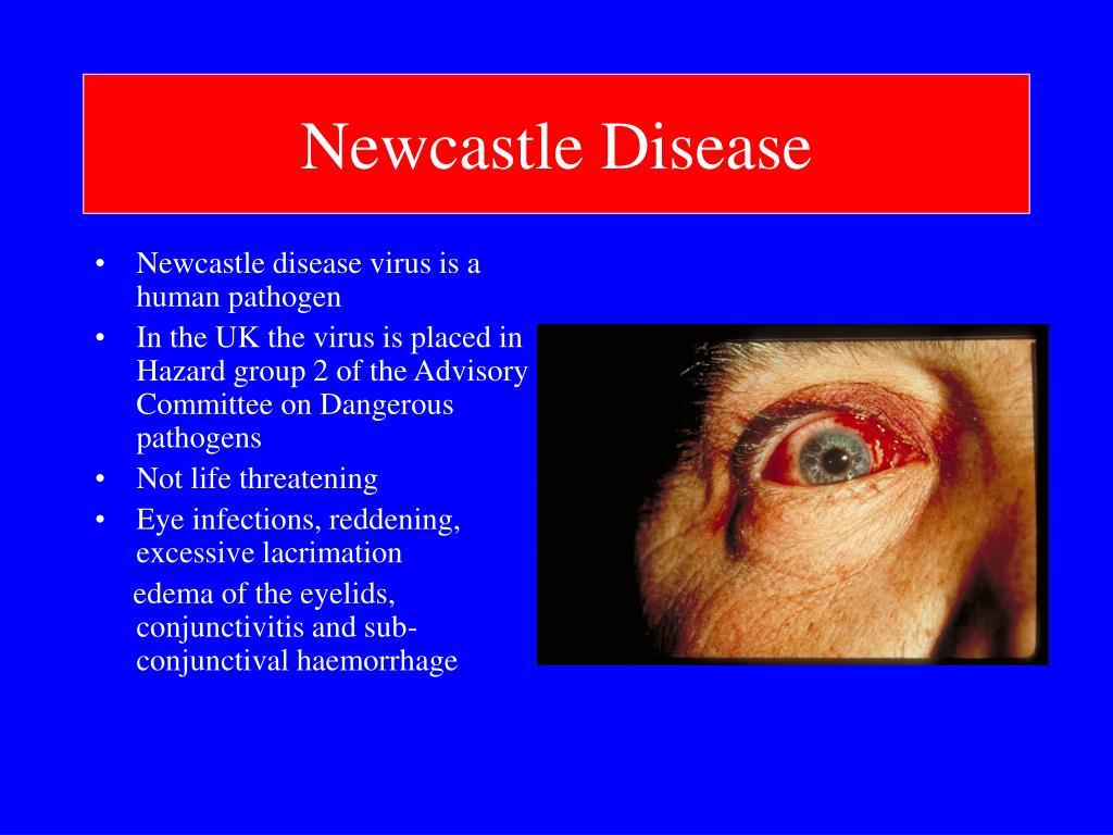 Newcastle Disease