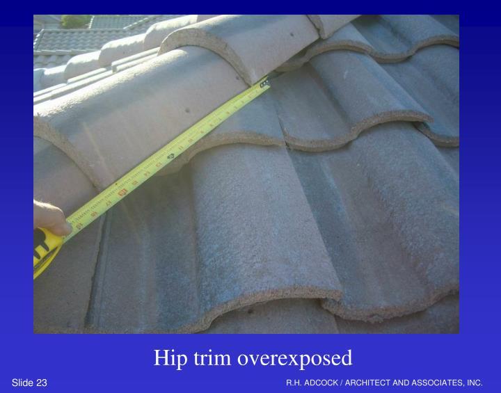 Hip trim overexposed