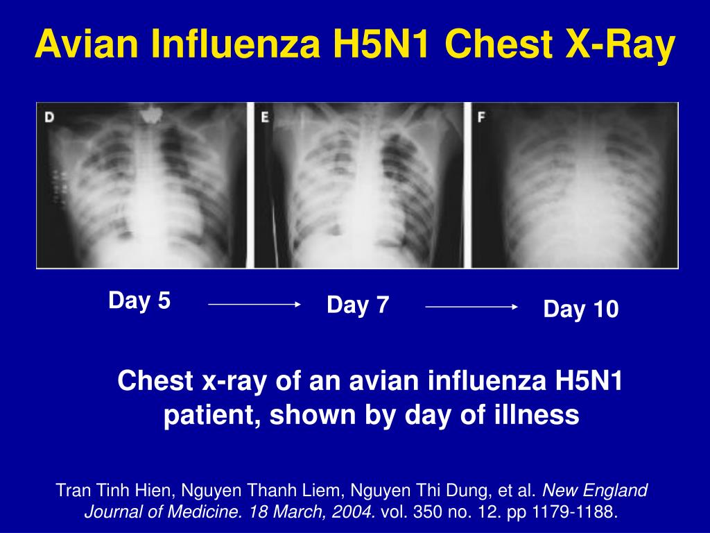 Avian Influenza H5N1 Chest X-Ray