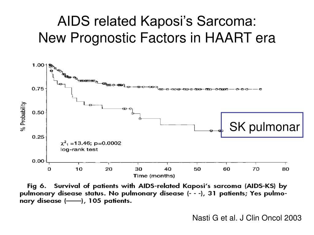 AIDS related Kaposi's Sarcoma: