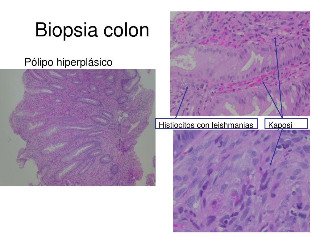 Biopsia colon