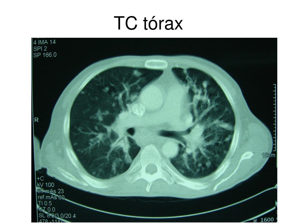 TC tórax