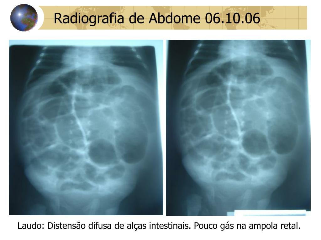 Radiografia de Abdome 06.10.06