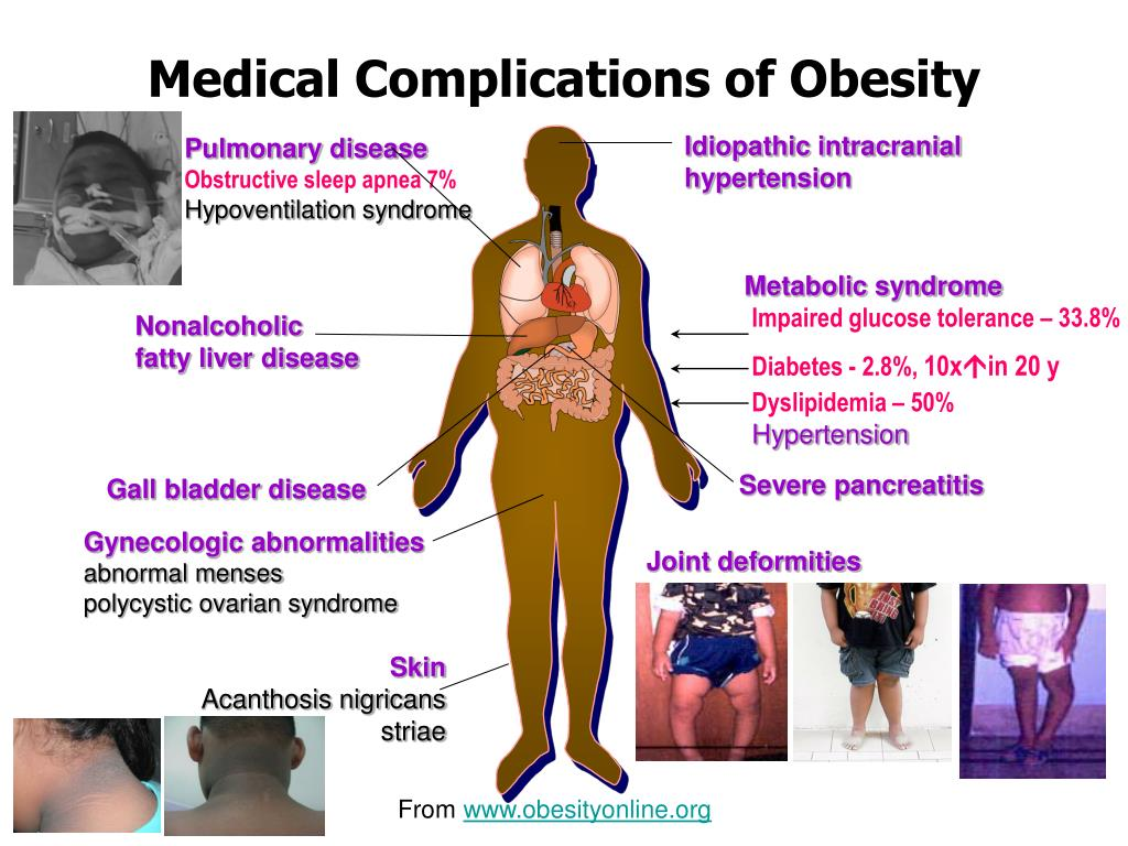 Medical Complications of Obesity
