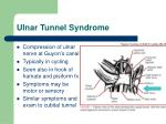 ulnar tunnel syndrome