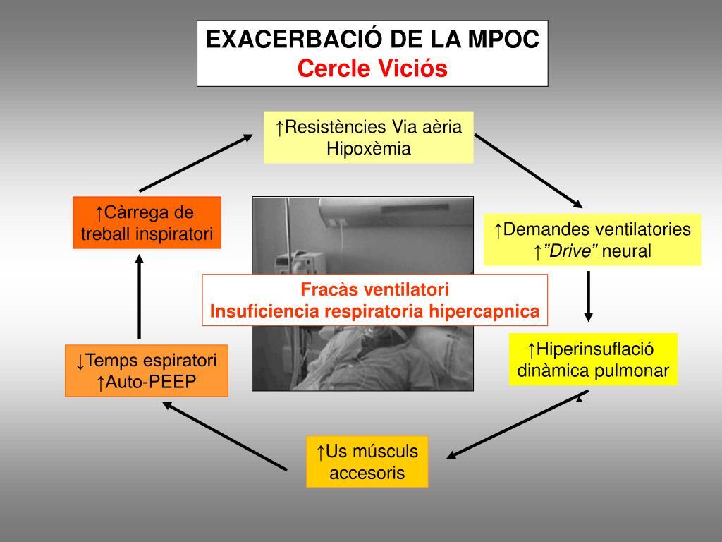 EXACERBACIÓ DE LA MPOC