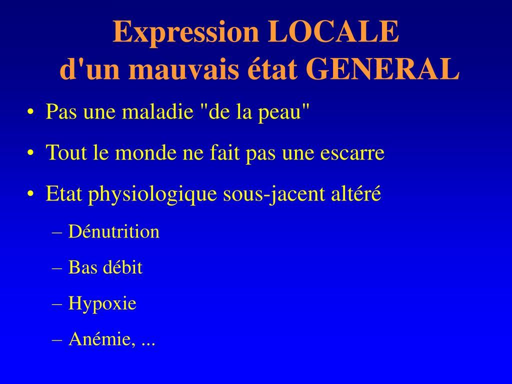 Expression LOCALE