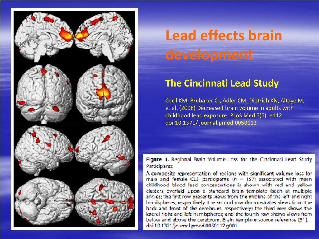 Lead effects brain development