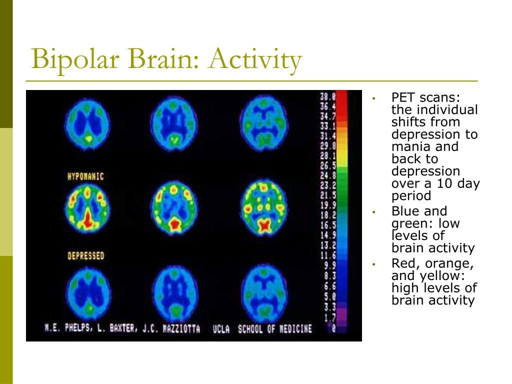 Bipolar Brain: Activity