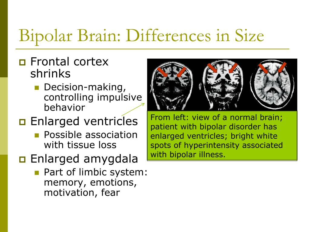Bipolar Brain: Differences in Size