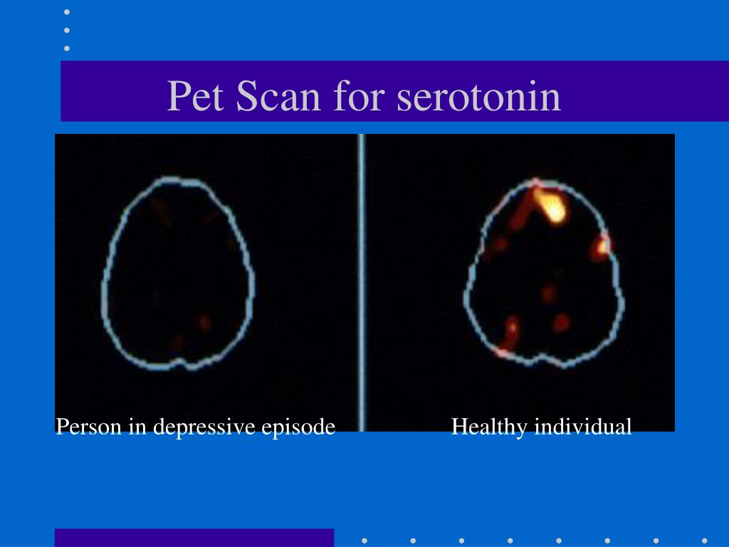 Pet Scan for serotonin