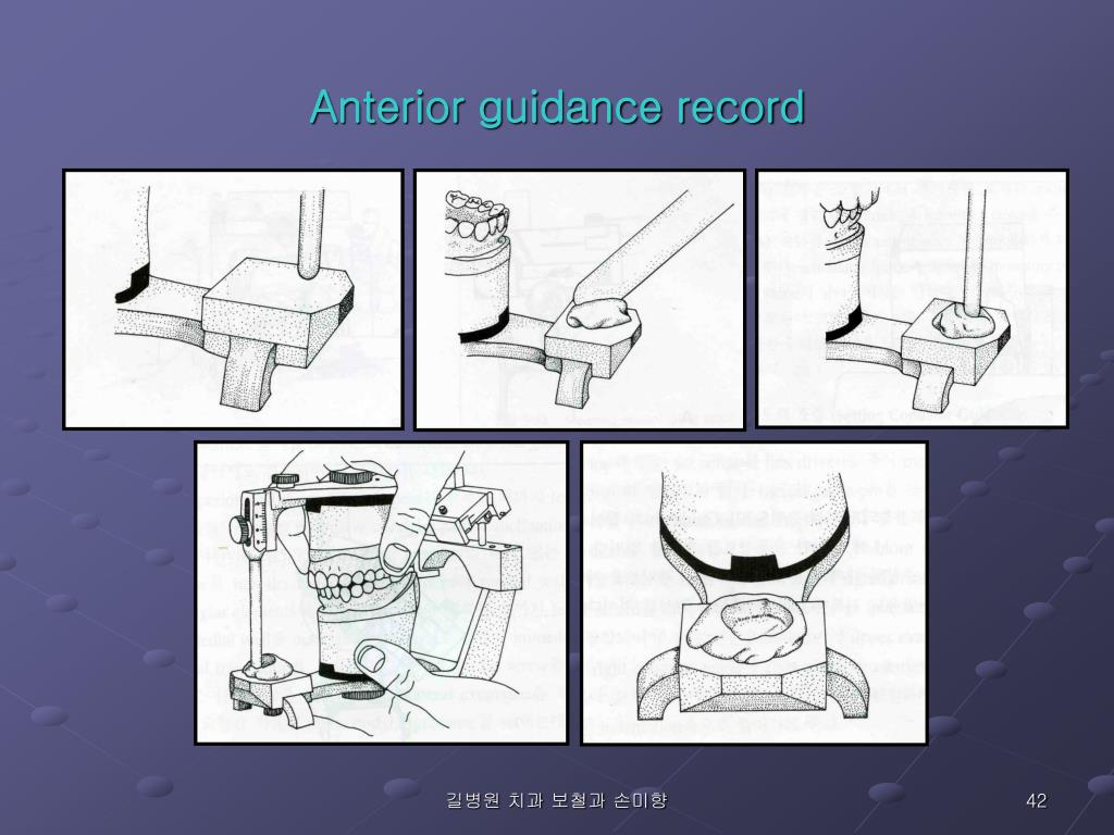 Anterior guidance record