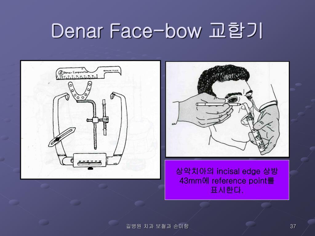 Denar Face-bow
