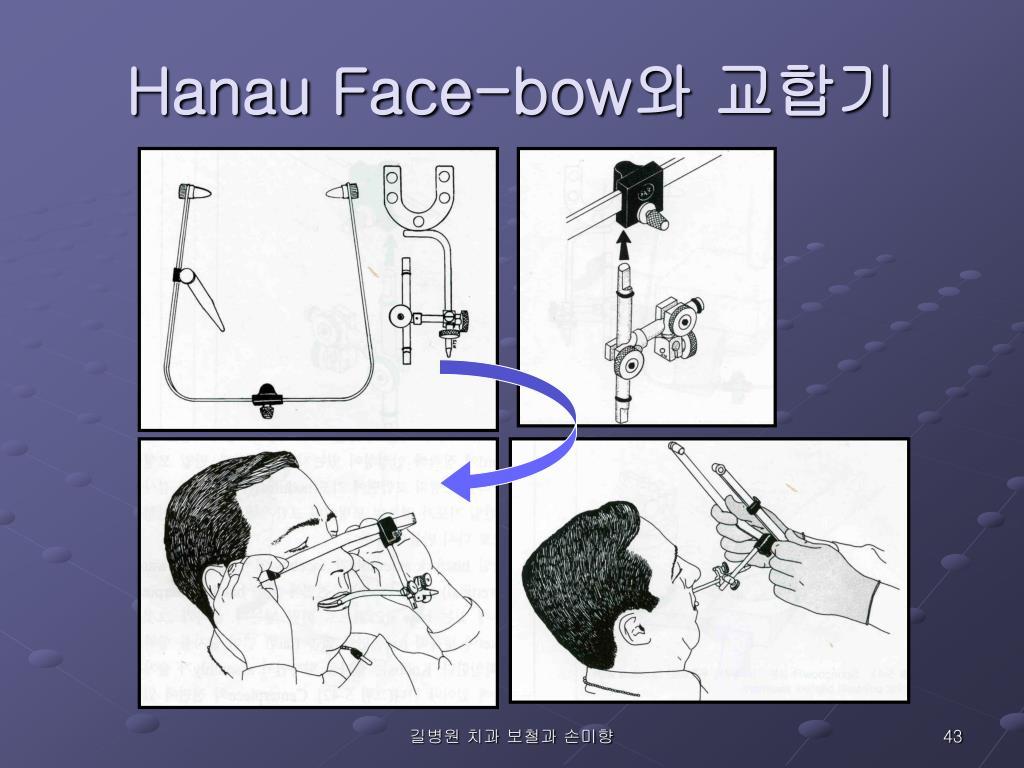 Hanau Face-bow