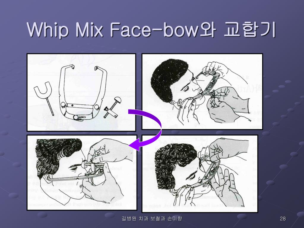 Whip Mix Face-bow