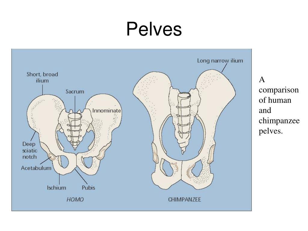 Pelves