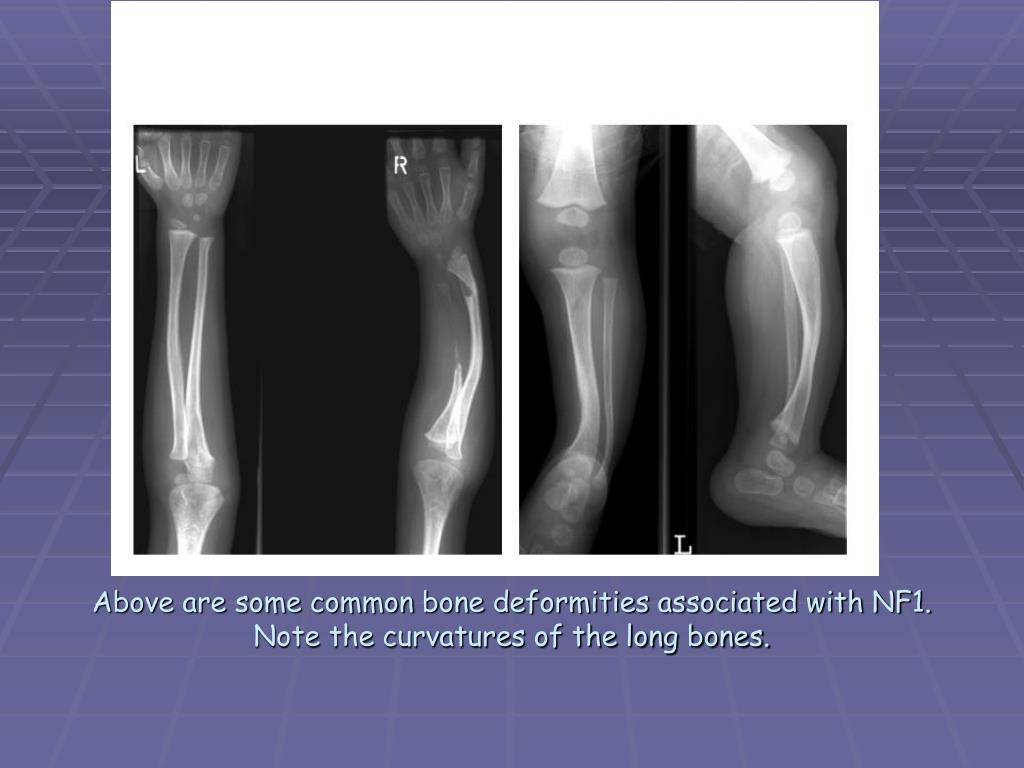 Above are some common bone deformities associated with NF1. Note the curvatures of the long bones.