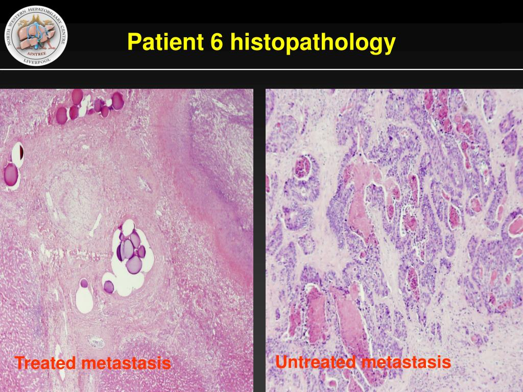 Patient 6 histopathology