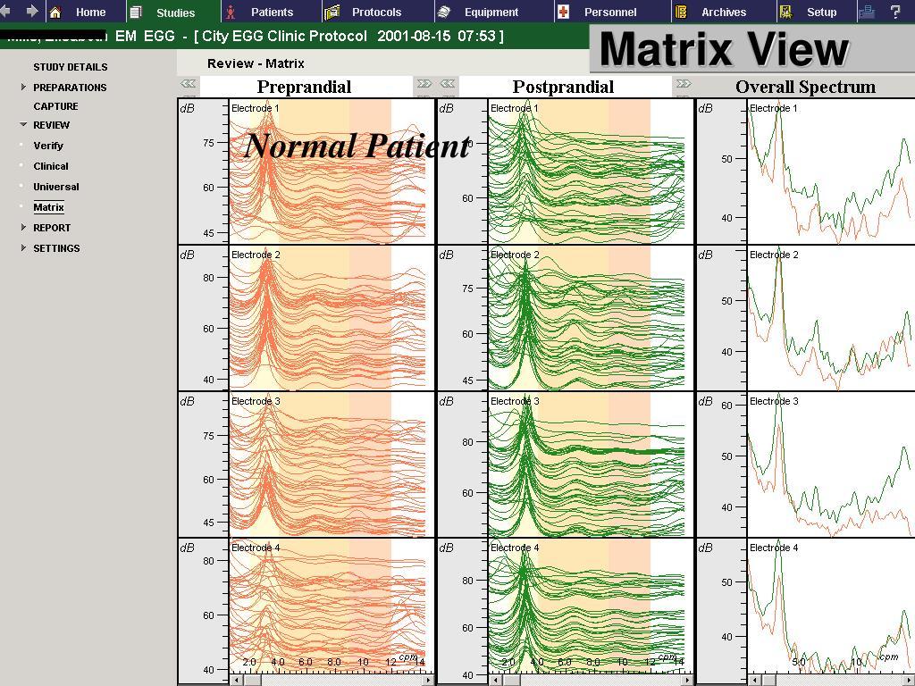 Matrix View