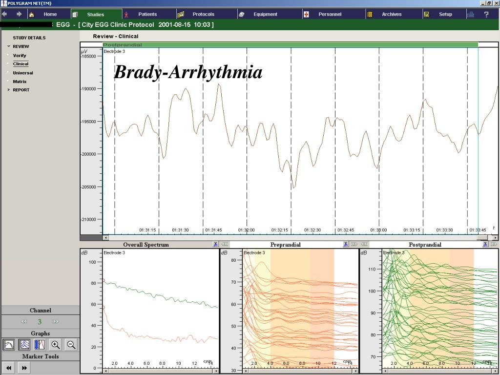 Brady-Arrhythmia
