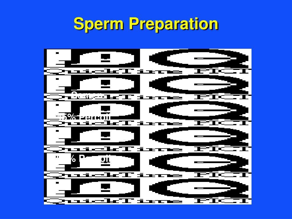 Sperm Preparation