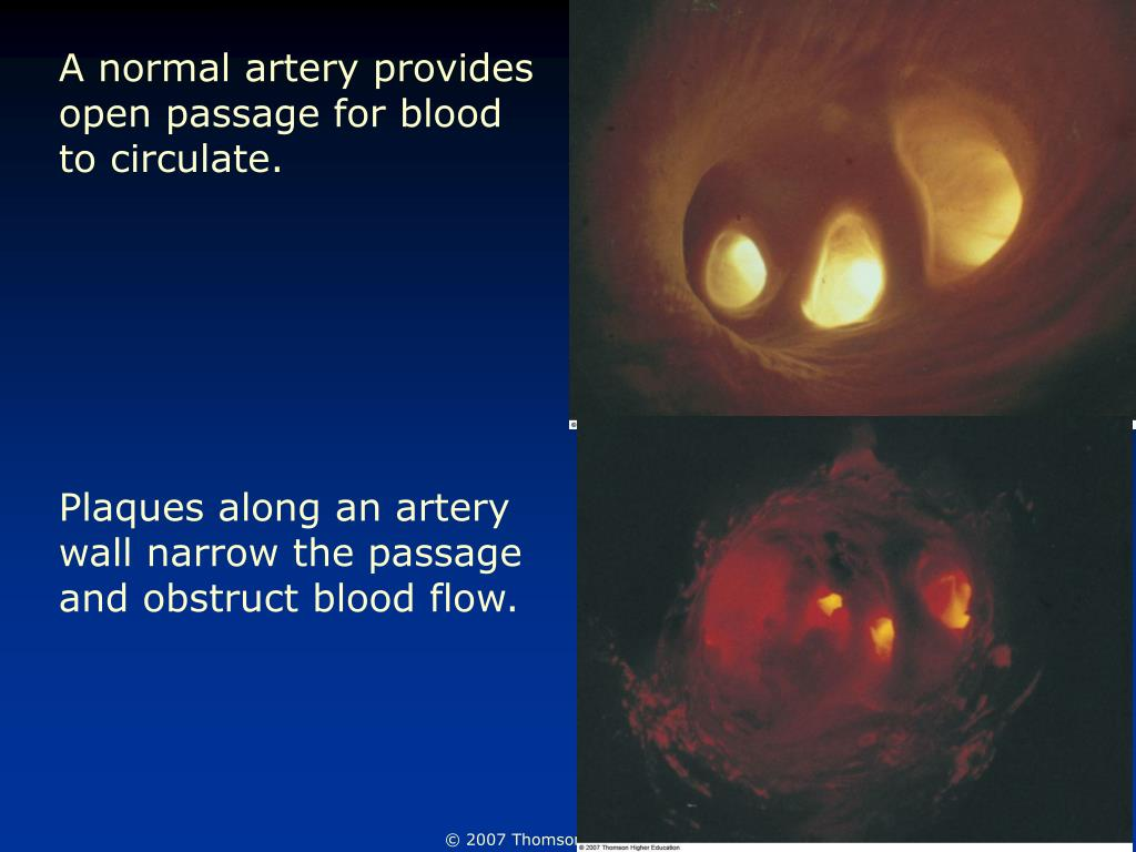 A normal artery provides open passage for blood to circulate.