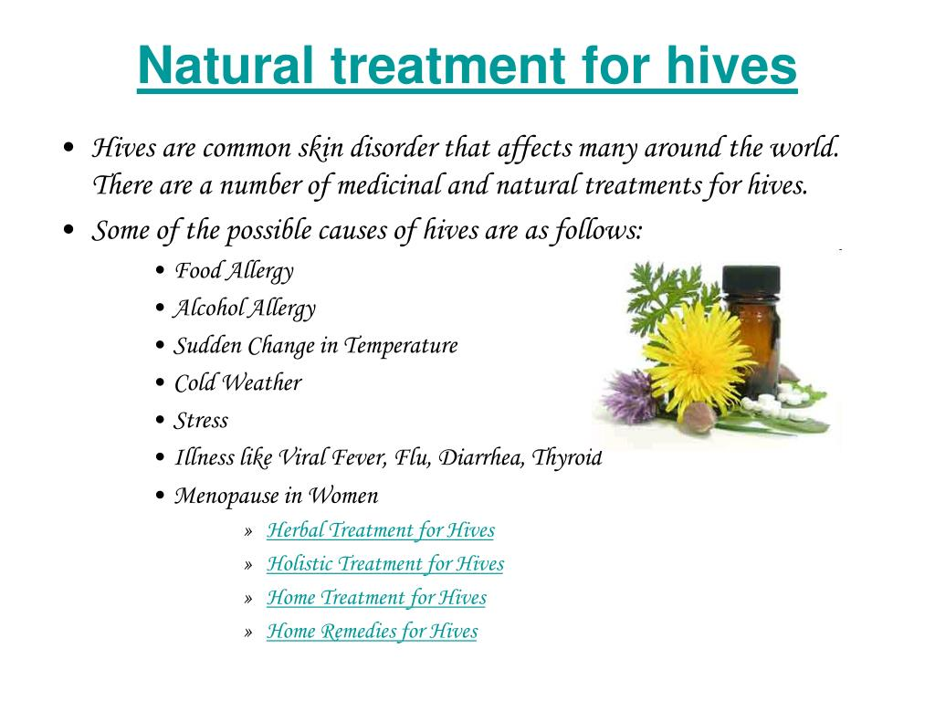 Natural treatment for hives