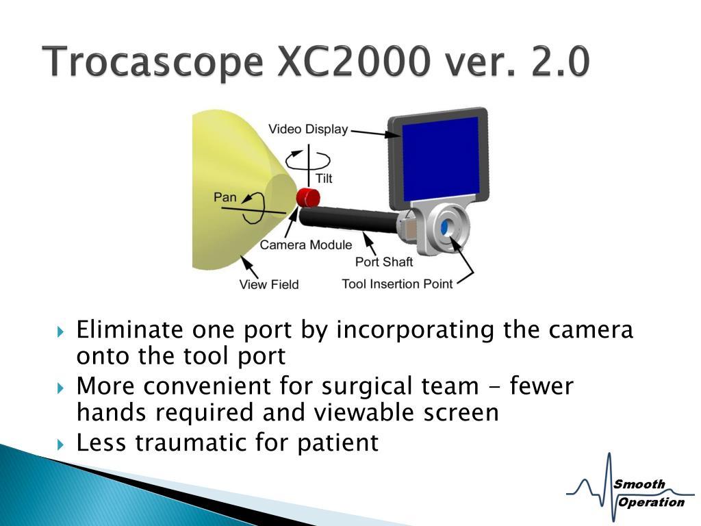 Trocascope