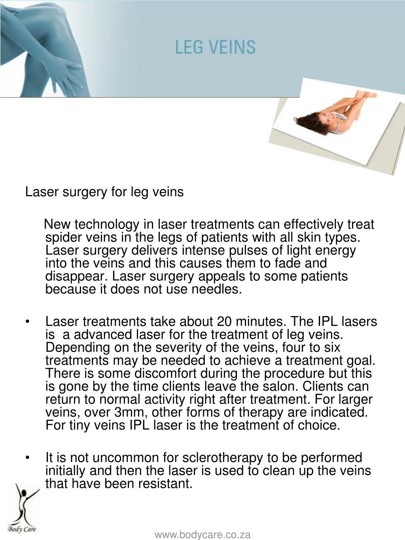 Laser surgery for leg veins