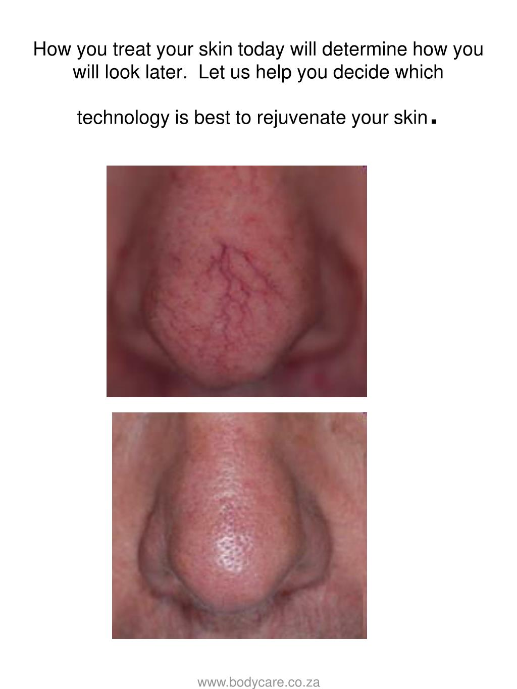 How you treat your skin today will determine how you will look later.  Let us help you decide which technology is best to rejuvenate your skin