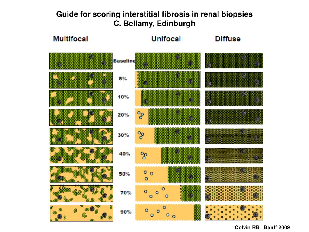 Guide for scoring interstitial fibrosis in renal biopsies