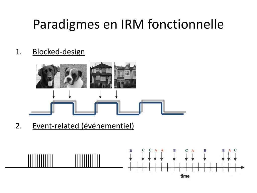 Paradigmes en IRM fonctionnelle