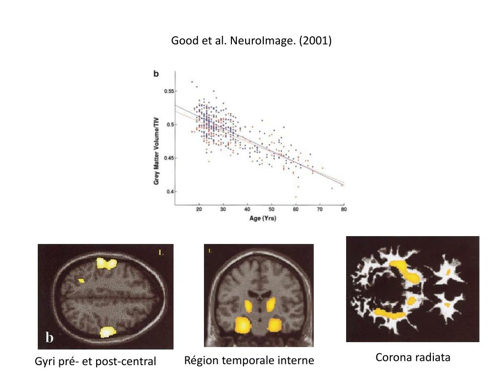 Good et al. NeuroImage. (2001)